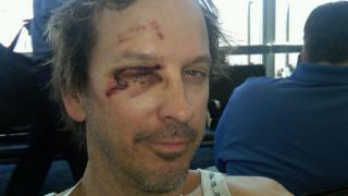 phil laak bruised