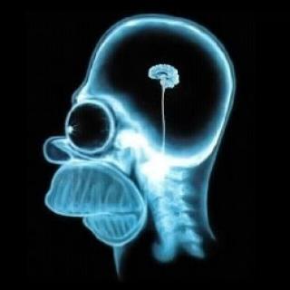 BrainScanHomerSimpson